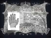 ІІ ступінь (середньої тяжкості). Проявляється некрозом поверхневих шарів шкір...