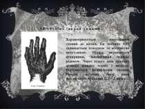 IV ступінь (вкрай тяжкий). Характеризується змертвінням тканин до кістки. Ця ...