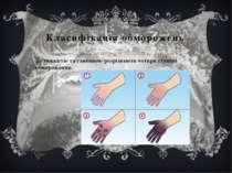 Класифікація обморожень За тяжкістю та глибиною розрізняють чотири ступені об...