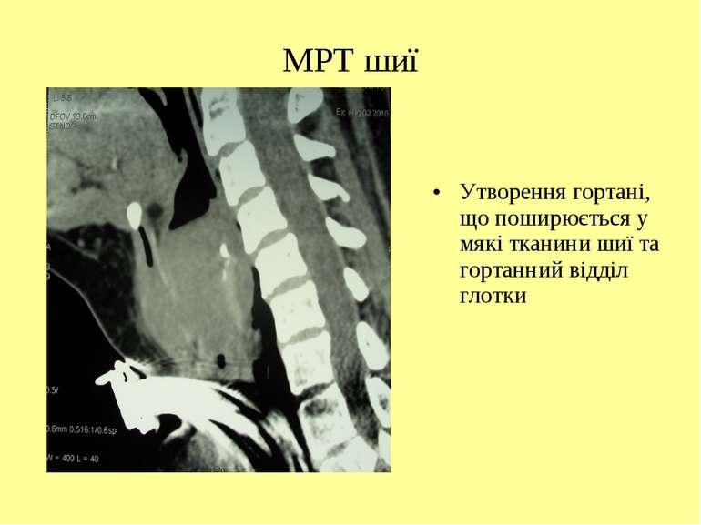 МРТ шиї Утворення гортані, що поширюється у мякі тканини шиї та гортанний від...