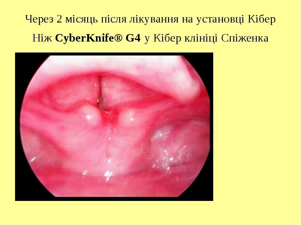 Через 2 місяць після лікування на установці Кібер Ніж CyberKnife® G4 у Кібер ...