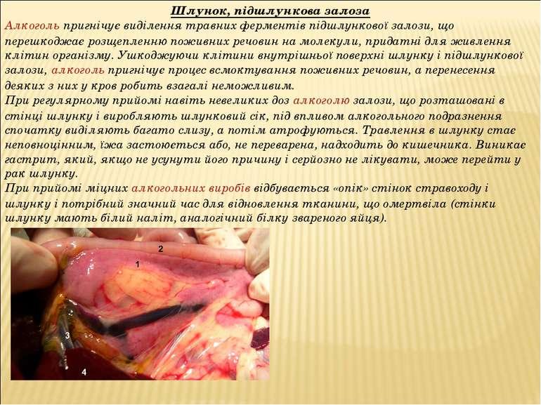 Шлунок, підшлункова залоза Алкогольпригнічує виділення травних ферментів під...