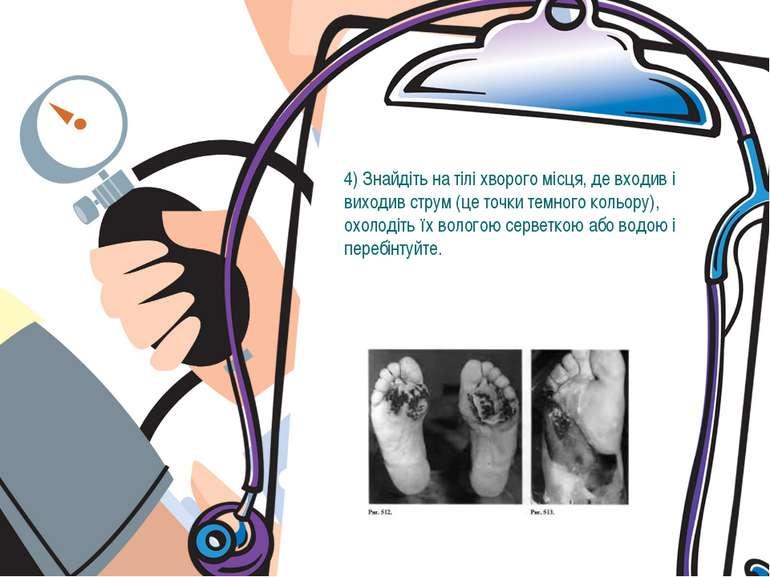 4) Знайдіть на тілі хворого місця, де входив і виходив струм (це точки темног...
