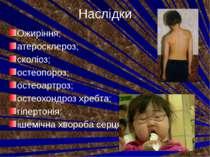 Наслідки Ожиріння; атеросклероз; сколіоз; остеопороз; остеоартроз; остеохондр...