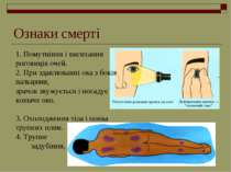 Ознаки смерті 1. Помутніння і висихання роговиців очей. 2. При здавлюванні ок...