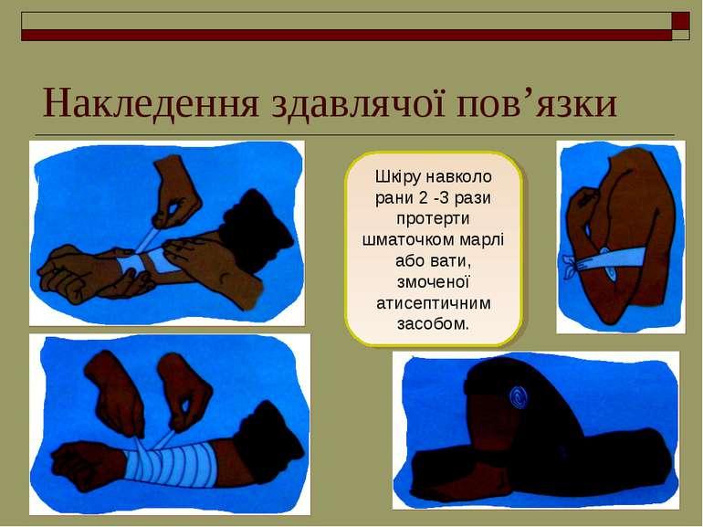 Накледення здавлячої пов'язки Шкіру навколо рани 2 -3 рази протерти шматочком...