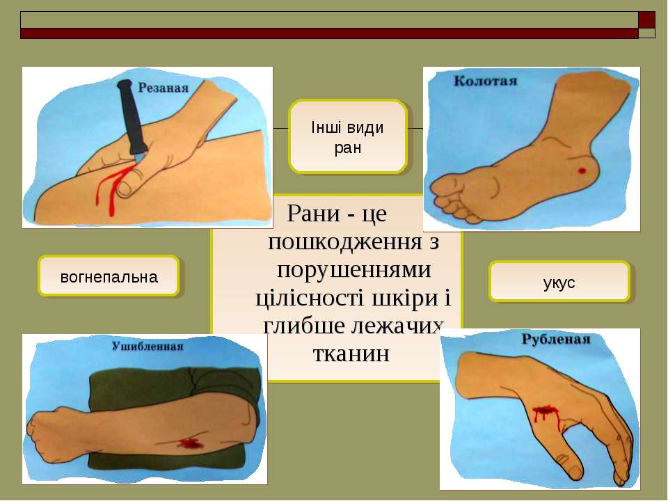 Рани- це пошкодження з порушеннями цілісності шкіри і глибше лежачих тканин ...