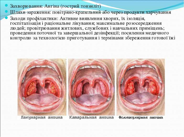 Захворювання: Ангіна (гострий тонзиліт) Шляхи зараження: повітряно-крапельний...