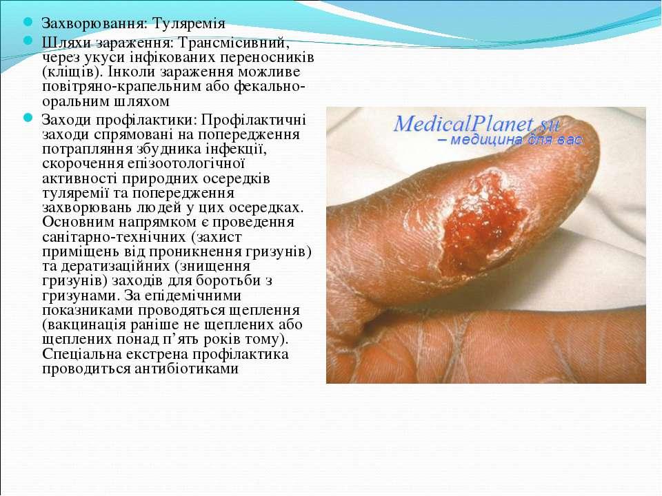 Захворювання: Туляремія Шляхи зараження: Трансмісивний, через укуси інфікован...