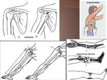 поранення по перелом кісток вивихи