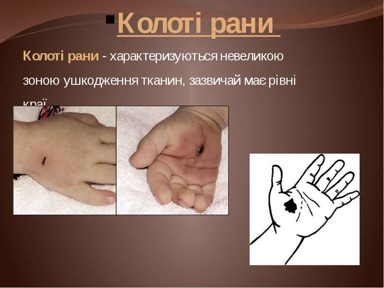 Колоті рани Колоті рани - характеризуються невеликою зоною ушкодження тканин,...