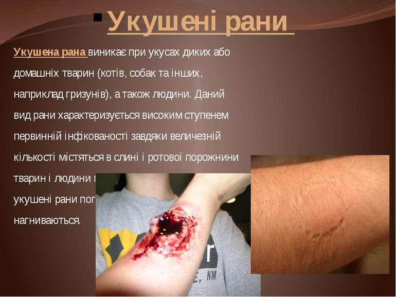 Укушені рани Укушена рана виникає при укусах диких або домашніх тварин (котів...