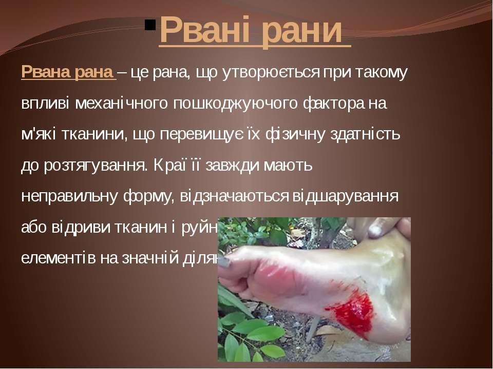 Рвані рани Рвана рана – це рана, що утворюється при такому впливі механічного...