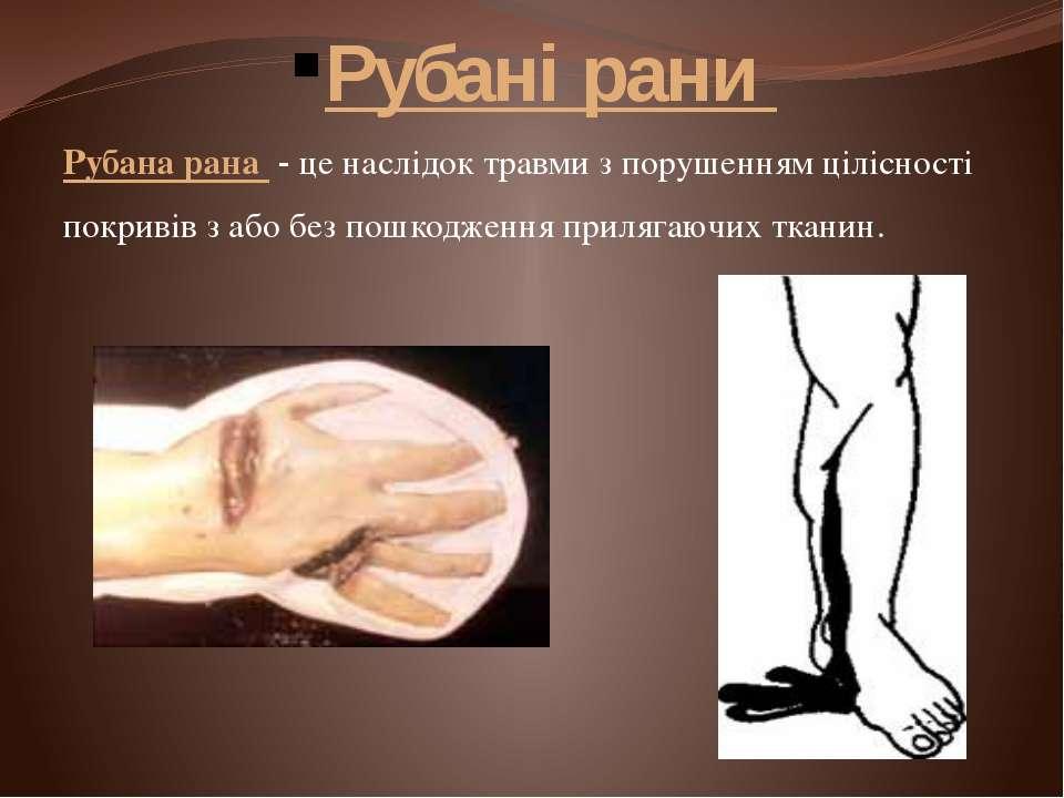 Рубані рани Рубана рана- це наслідоктравмиз порушенням цілісності покриві...