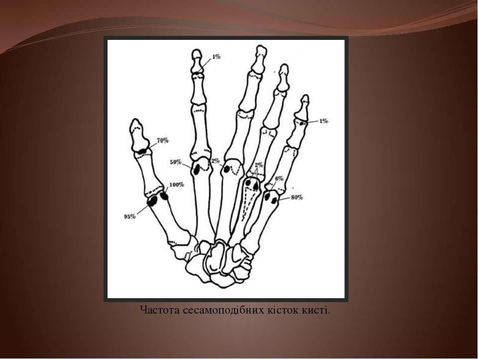 Частота сесамоподібних кісток кисті.