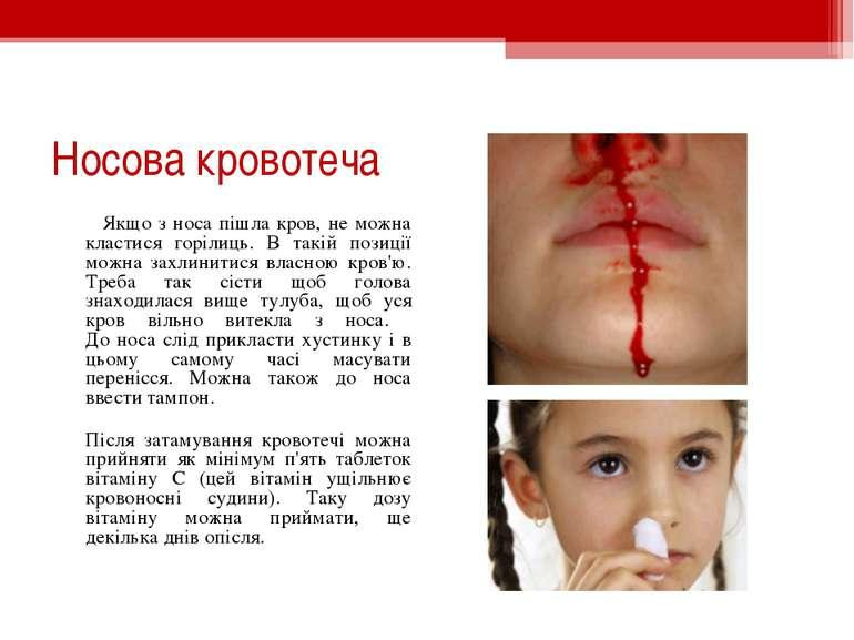 Носова кровотеча Якщо з носа пішла кров, не можна кластися горілиць. В такій ...