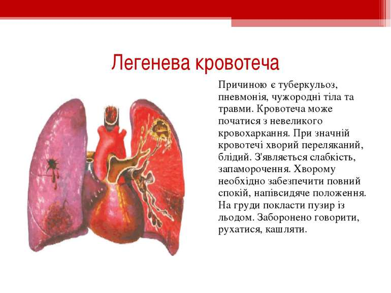 Легенева кровотеча Причиною є туберкульоз, пневмонія, чужородні тіла та травм...