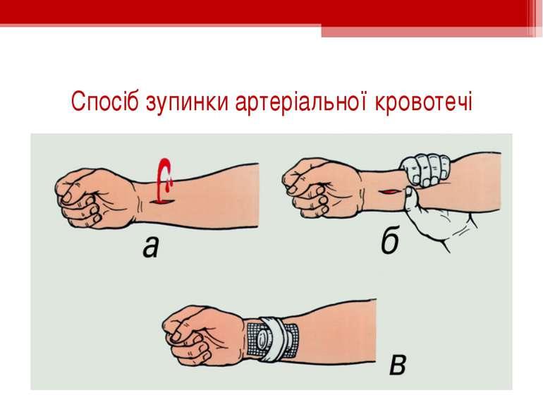 Спосіб зупинки артеріальної кровотечі