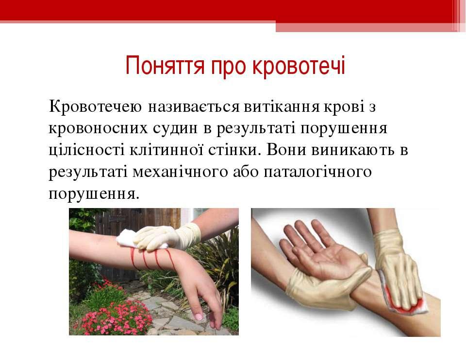 Поняття про кровотечі Кровотечею називається витікання крові з кровоносних су...