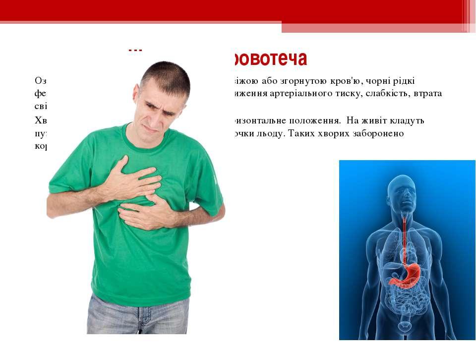 Шлункова кровотеча Ознаками шлункової кровотечі є блювота свіжою або згорнуто...