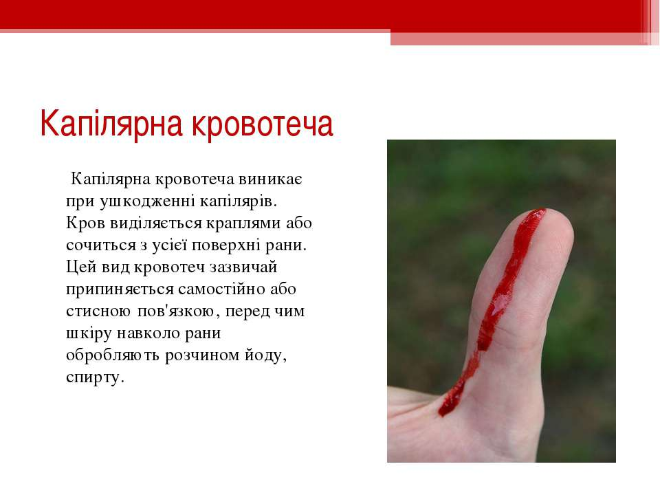 Капілярна кровотеча Капілярна кровотеча виникає при ушкодженні капілярів. Кро...