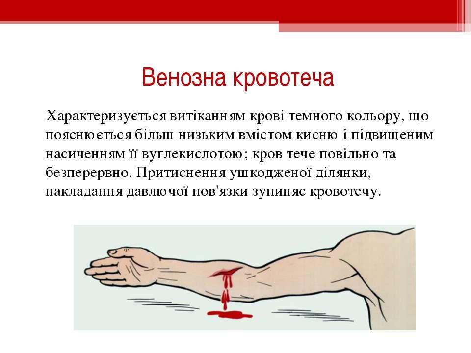 Венозна кровотеча Характеризується витіканням крові темного кольору, що поясн...