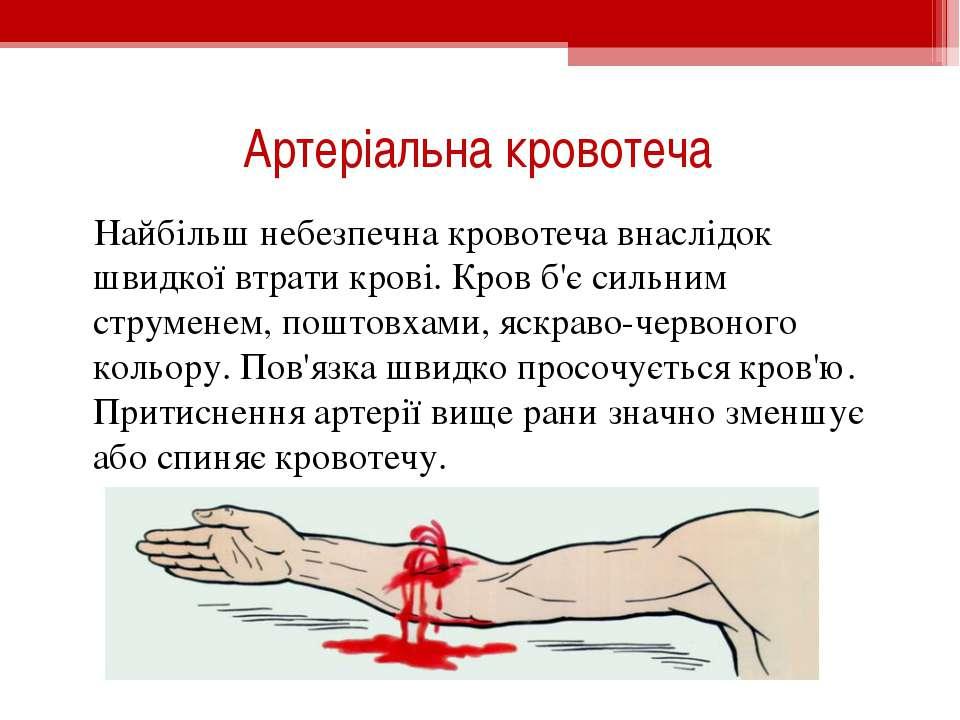 Артеріальна кровотеча Найбільш небезпечна кровотеча внаслідок швидкої втрати ...