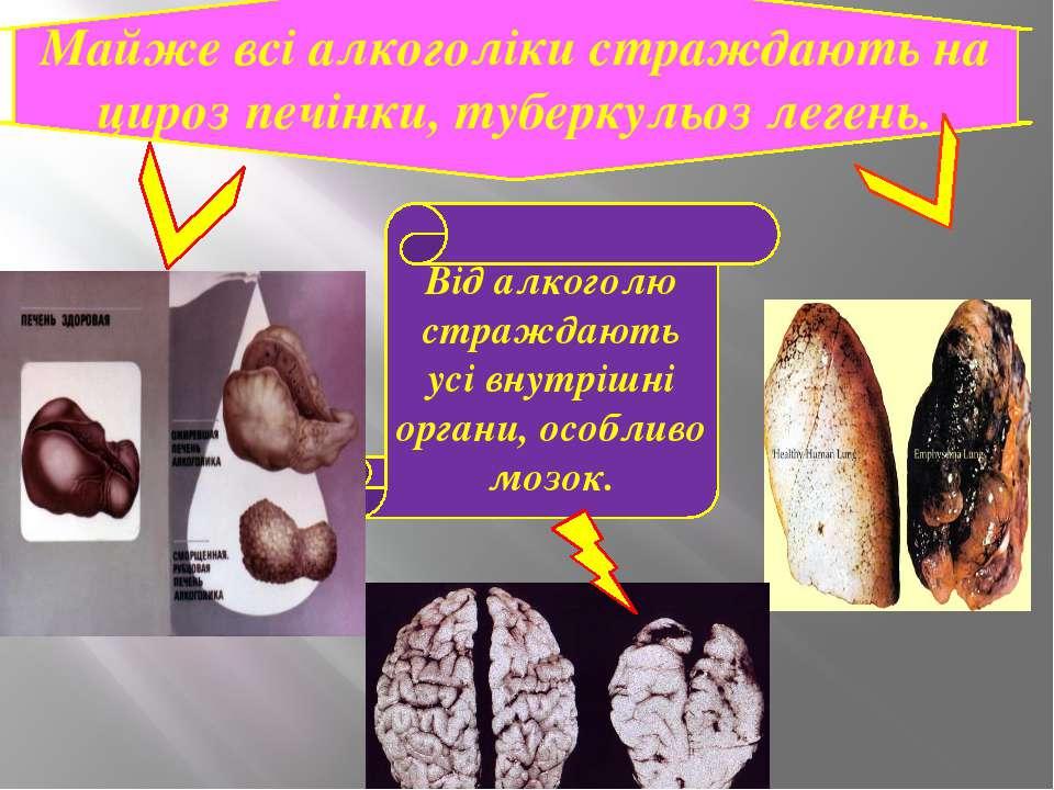 Від алкоголю страждають усі внутрішні органи, особливо мозок. Майже всі алког...