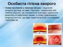 Особиста гігієна хворого Поява пролежнів у лежачих хворих - свідчення поганог...