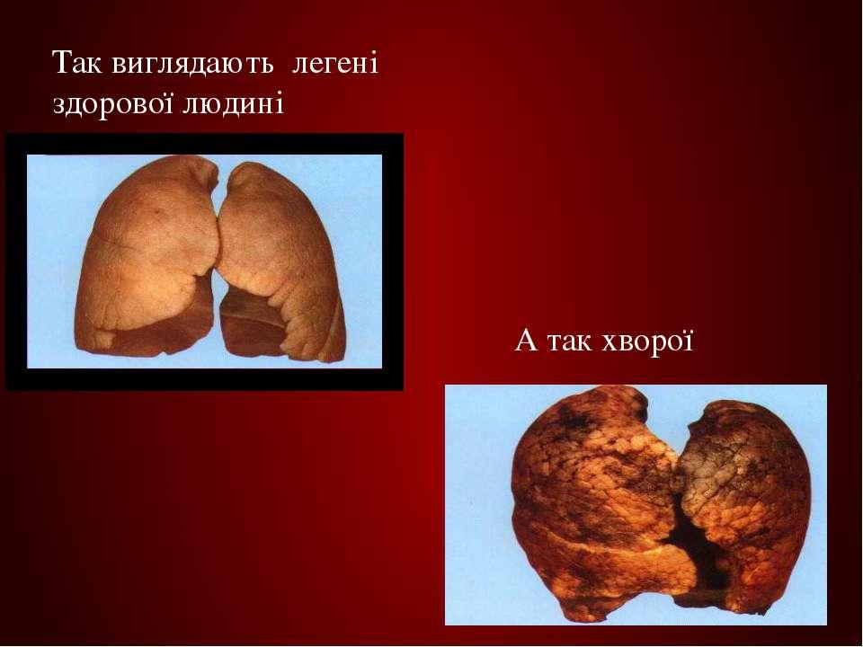 Так виглядають легені здорової людині А так хворої