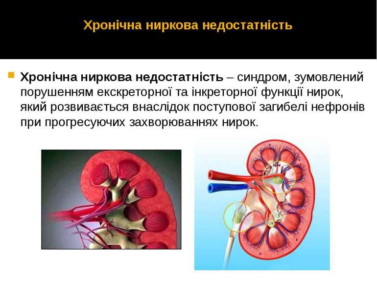 Хронічна ниркова недостатність Хронічна ниркова недостатність – синдром, зумо...