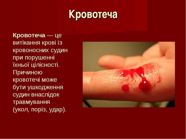 Кровотеча Кровотеча — це витікання крові із кровоносних судин при порушенні ї...