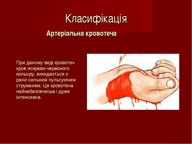 Класифікація Артеріальна кровотеча При даному виді кровотеч кров яскраво-черв...