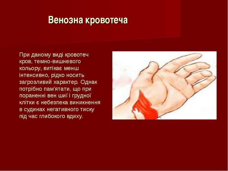 Венозна кровотеча При даному виді кровотеч кров, темно-вишневого кольору, вит...