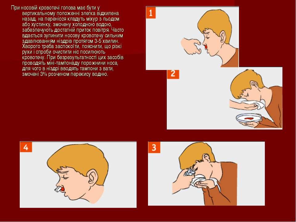При носовій кровотечі голова має бути у вертикальному положенні злегка відхил...