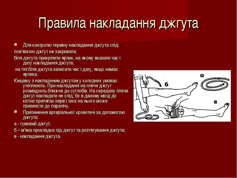 Правила накладання джгута Для контролю терміну накладання джгута слід: пов'яз...
