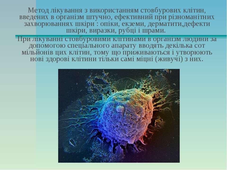 Метод лікування з використанням стовбурових клітин, введених в організм штучн...