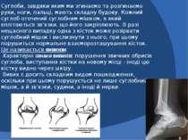 Суглоби, завдяки яким ми згинаємо та розгинаємо руки, ноги, пальці, мають скл...