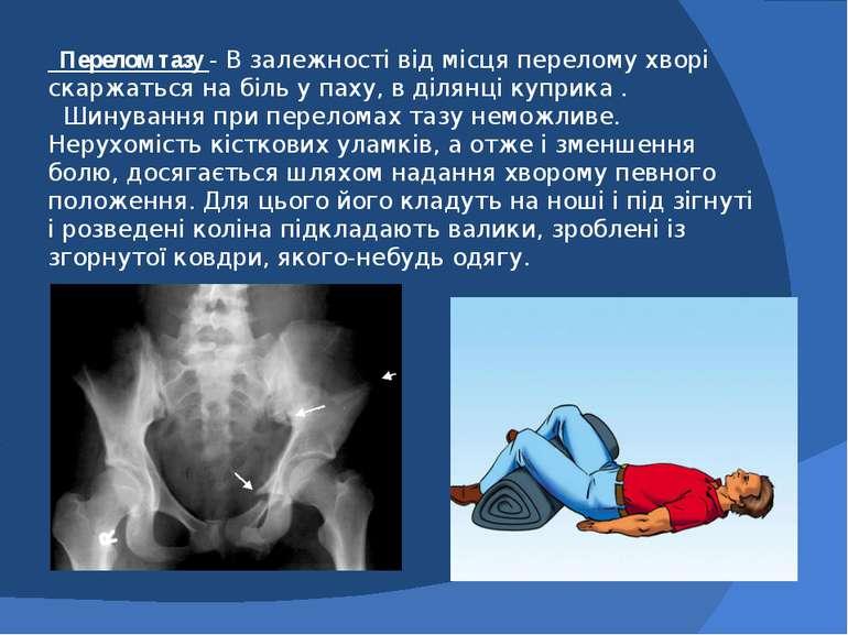 Перелом тазу - В залежності від місця перелому хворі скаржаться на біль у пах...