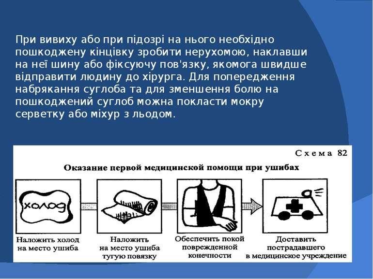 При вивиху або при підозрі на нього необхідно пошкоджену кінцівку зробити нер...