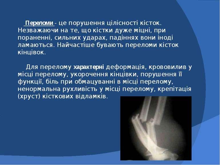 Переломи - це порушення цілісності кісток. Незважаючи на те, що кістки дуже м...