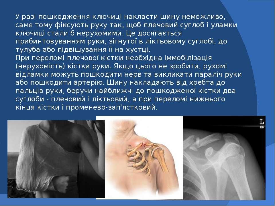 У разі пошкодження ключиці накласти шину неможливо, саме тому фіксують руку т...