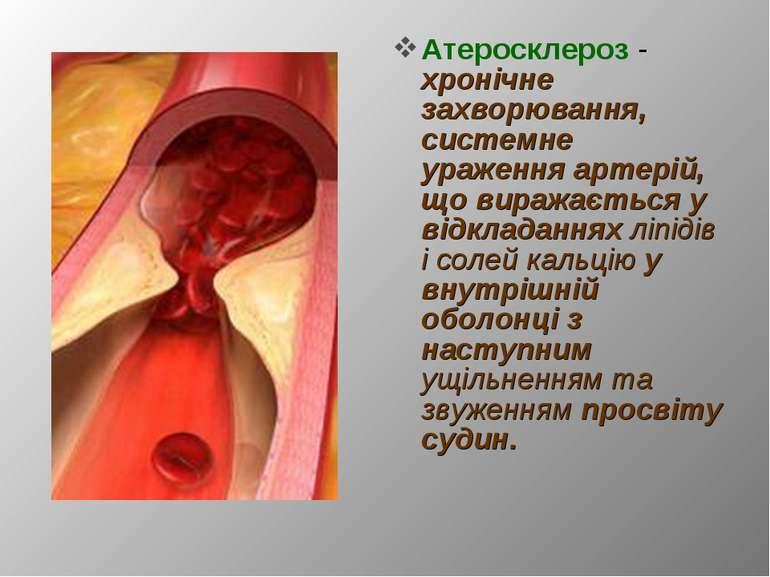 Атеросклероз - хронічне захворювання, системне ураження артерій, що виражаєть...