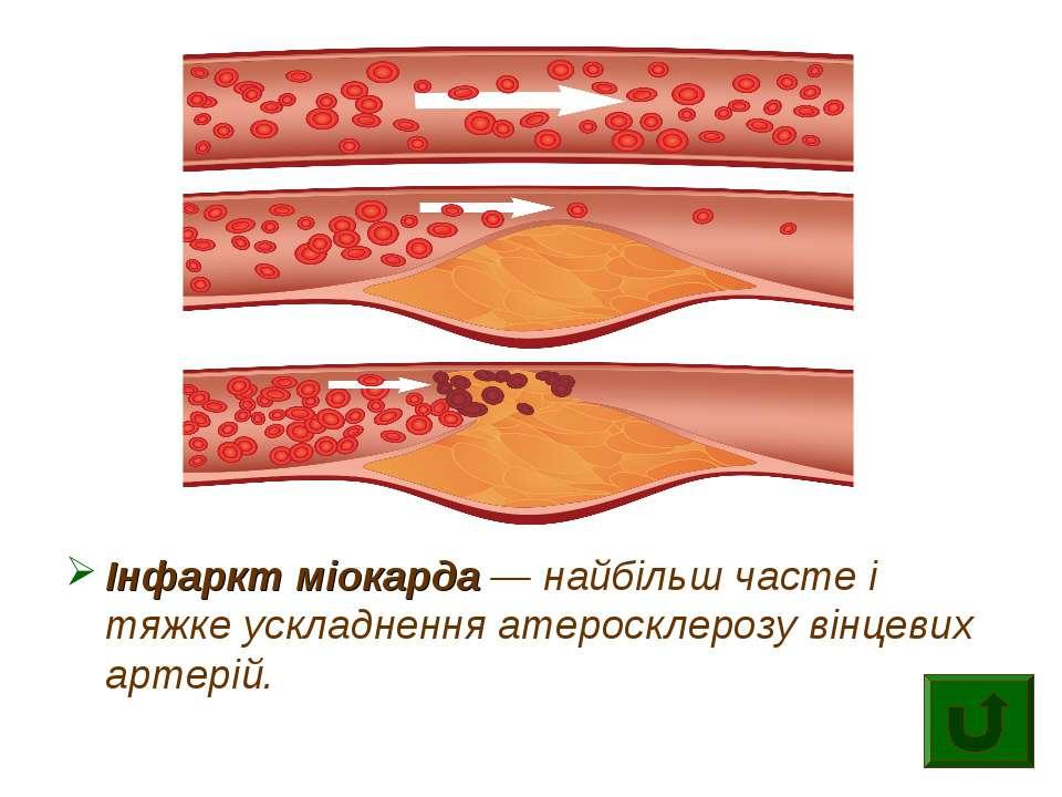 Інфаркт міокарда — найбільш часте і тяжке ускладнення атеросклерозу вінцевих ...