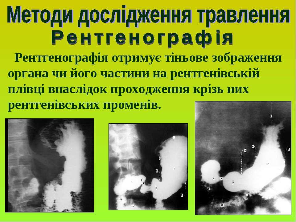 Рентгенографія отримує тіньове зображення органа чи його частини на рентгенів...