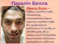 Параліч Белла Параліч Белла — неврит лицьового нерва; Ідіопатична, найпоширен...