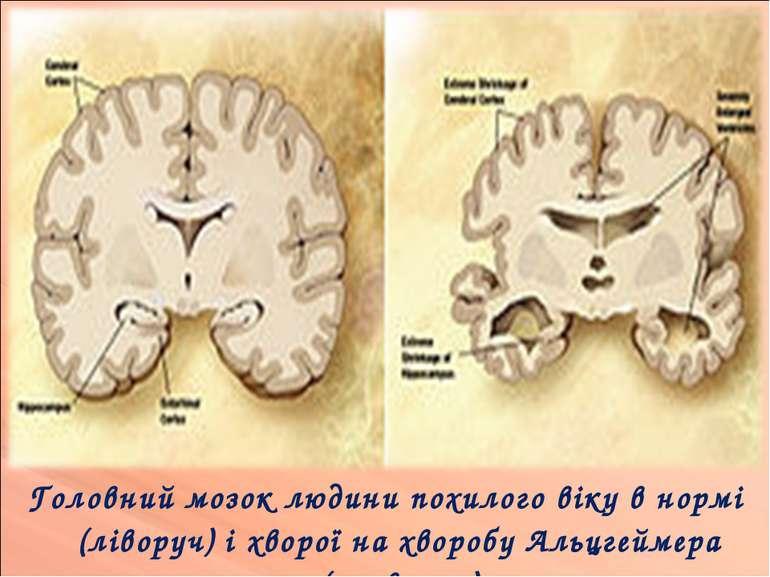 Головний мозок людини похилого віку в нормі (ліворуч) і хворої на хворобу Аль...