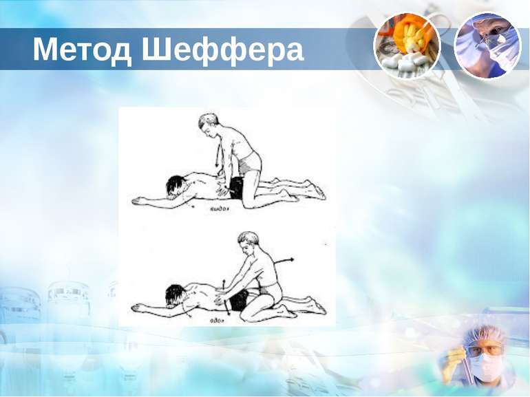 Метод Шеффера