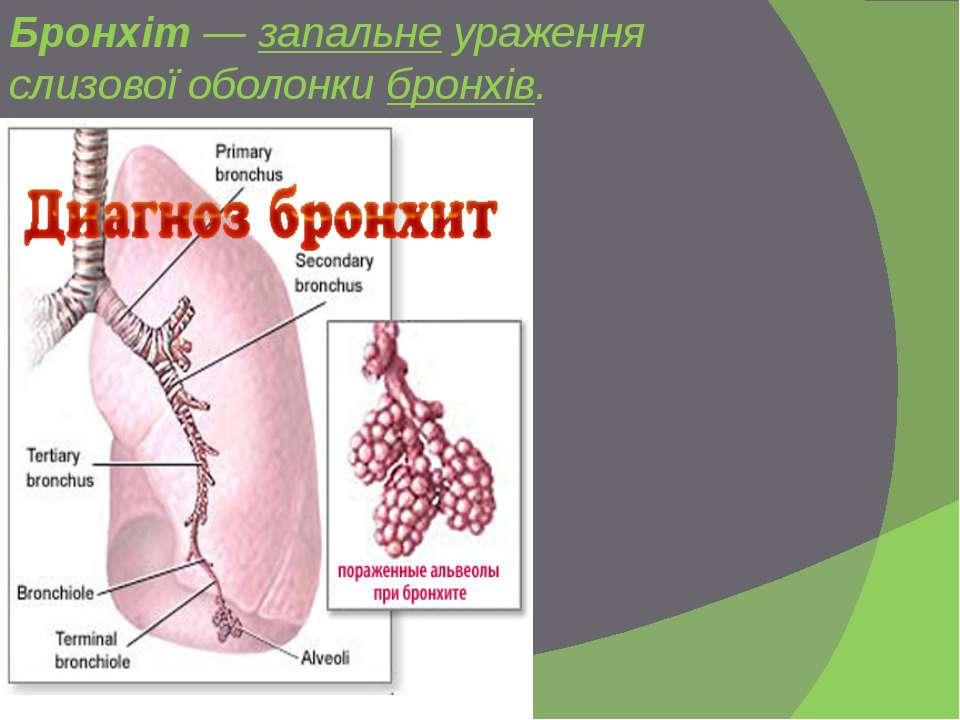 Бронхіт—запальнеураження слизової оболонкибронхів.