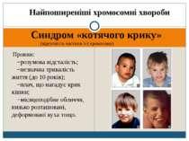 Найпоширеніші хромосомні хвороби Синдром «котячого крику» (відсутність частин...